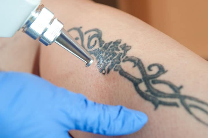 Best Laser Tattoo Removal Machine